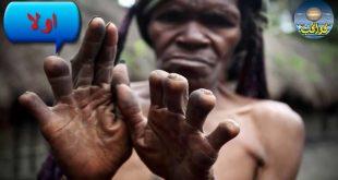 قطع الأصابع في اندونيسيا