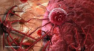 أمور تسبب السرطان أمرنا الأسلام الحنيف بتجنبها